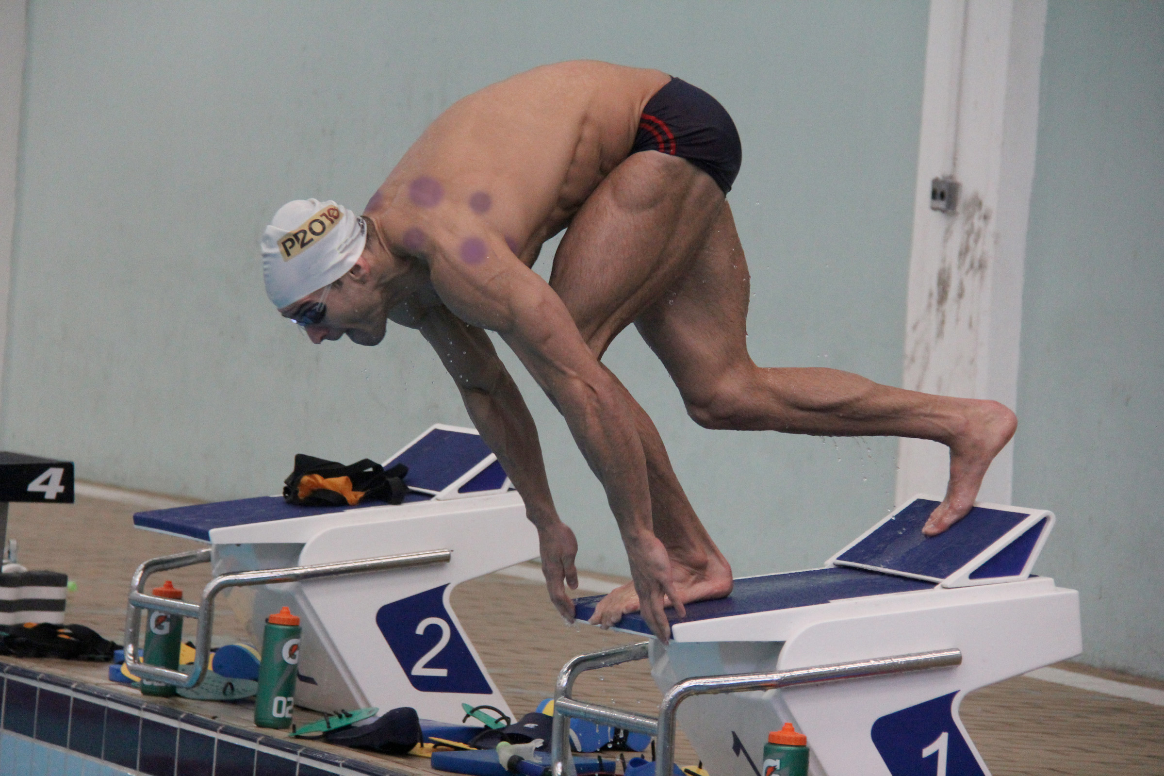 Freshman Undergoes Cupping Treatment in Preparation for Swim Test